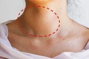 Nódulo na Tireoide: O que significa, sintomas e tipos